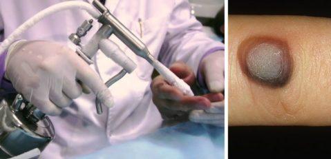 Обработка участка кожи перед криотерапией