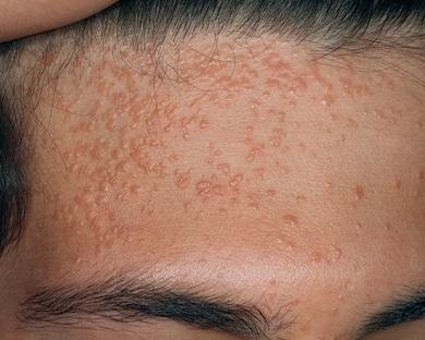 Плоские бородавки на лице и руках: лечение, удаление, причины 99