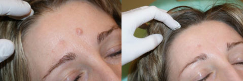 удаление бородавок криотерапией