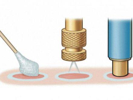 удаление бородавки криотерапией