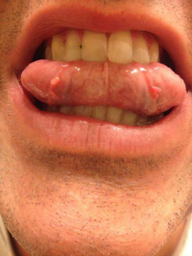 Яблочный уксус папилломы бородавки фото