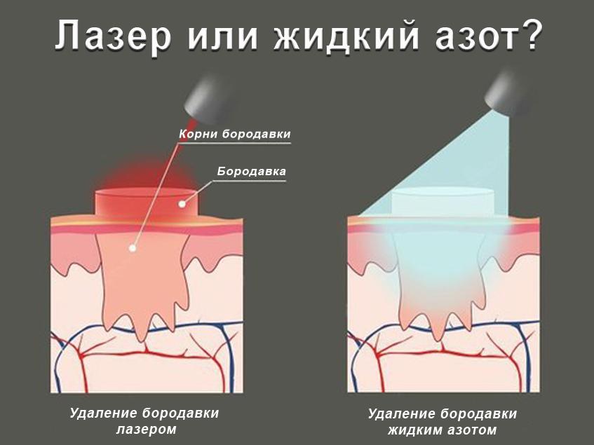 Действие жидкого азота и лазера