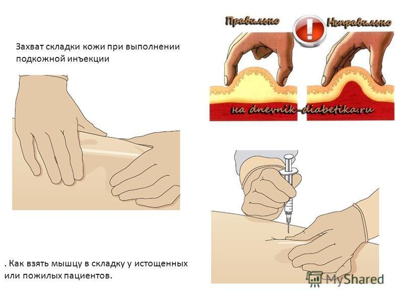 Как сшить лягушку своими руками выкройка