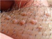 Папиллома на коже лица