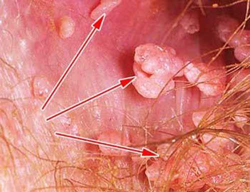 Как сдаётся анализ на вирус папилломы человека