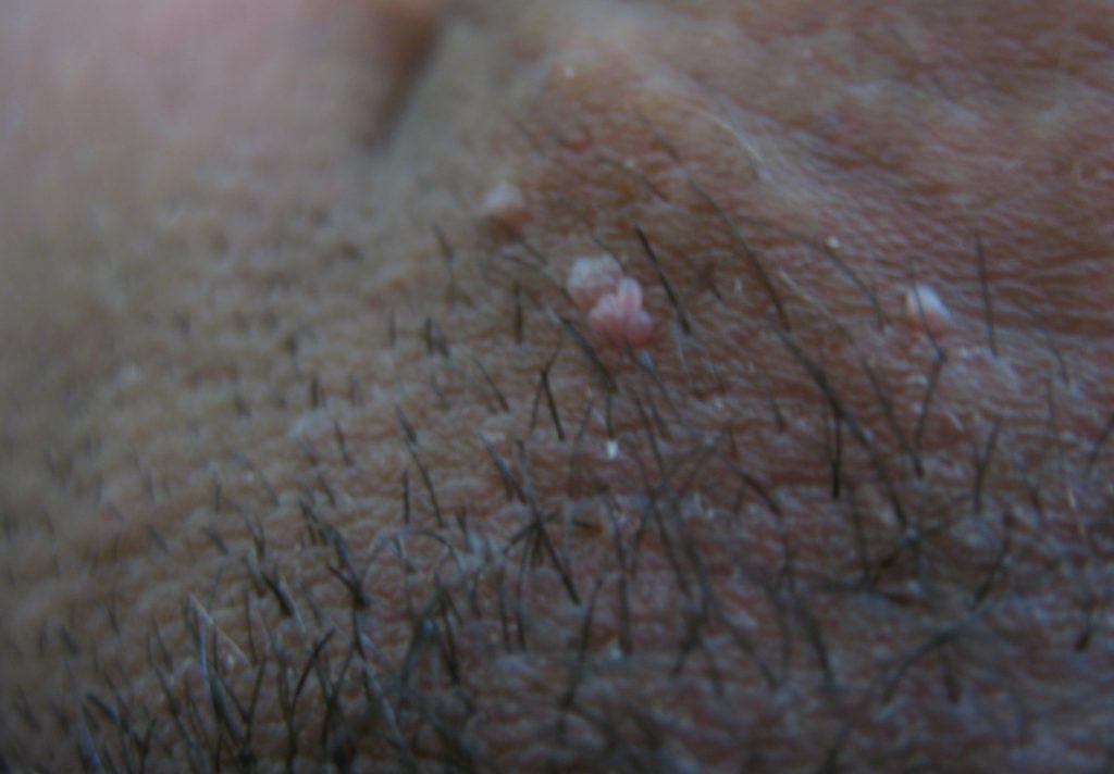 Бородавки в области паха у мужчин