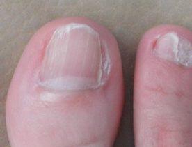 бородавка под ногтем на ноге