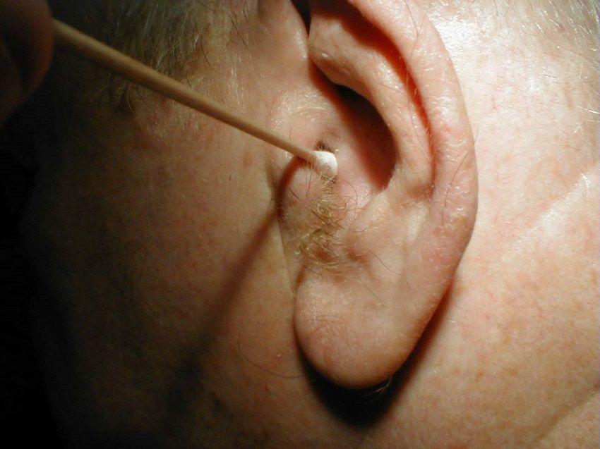 бородавка на ухе у человека фото