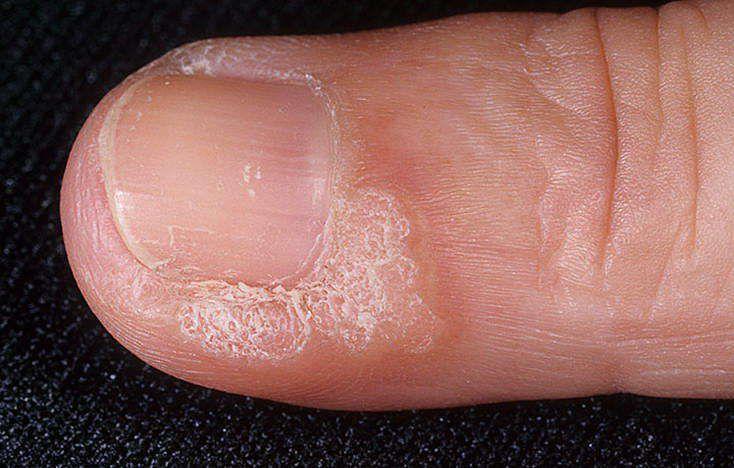 На руке под ногтем нарост