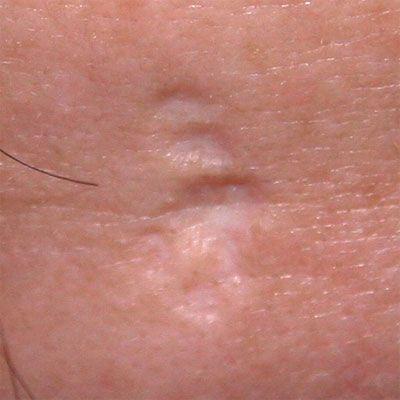 рубцы на коже