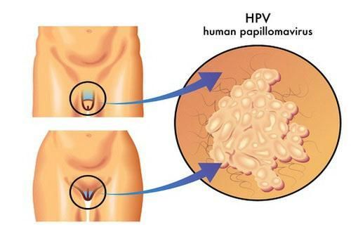 Подготовка к анализу вирус папилломы человека фото