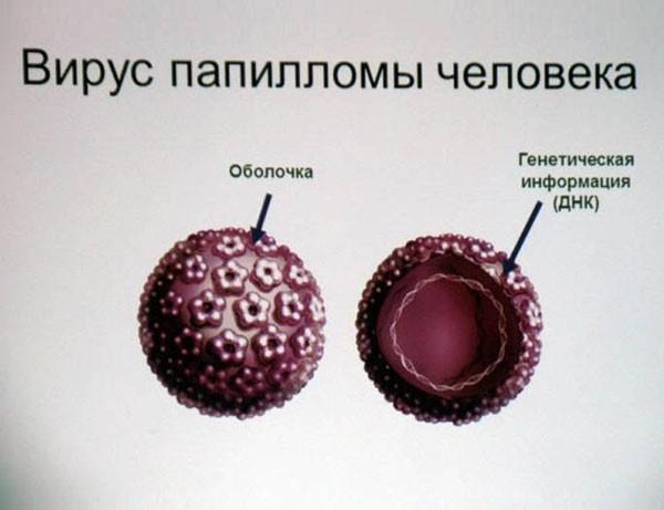 вирус папиломы