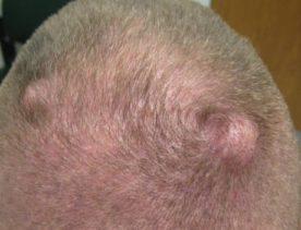 жировики на голове