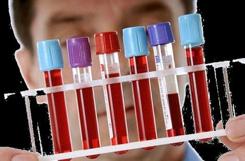 анализ венозной крови