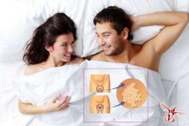 лечение папилломавируса у женщин