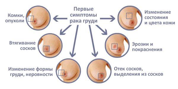 симптомы рака груди