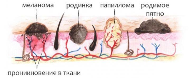Как отличить бородавку от рака