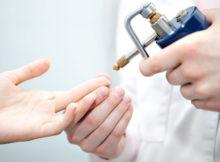 Криодеструкция - удаление бородавок жидким азотом