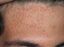 плоские бородавки на лице