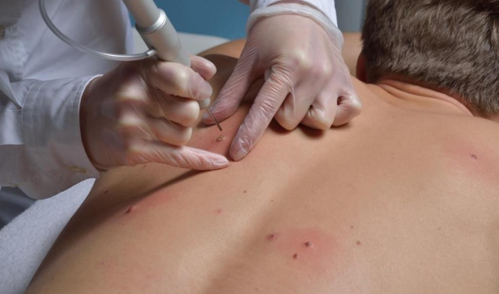 Бородавки на спине: причины появления и способы лечения. Как понять что бородавка проходит
