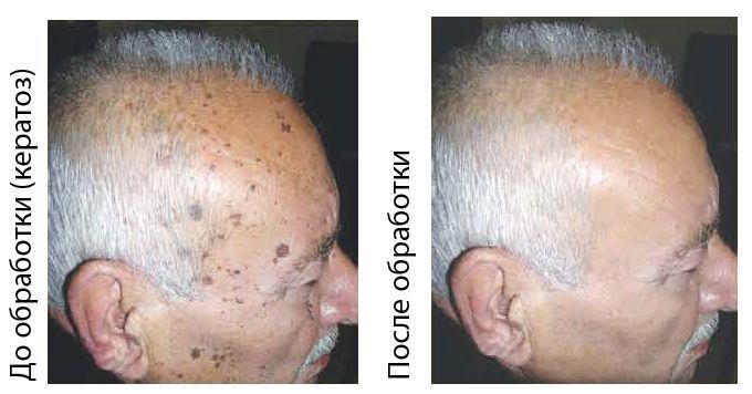 до и после препарата папиллек
