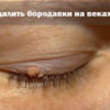 бородавка на веке глаза