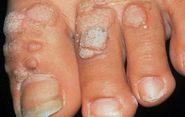 бородавки на пальцах ног