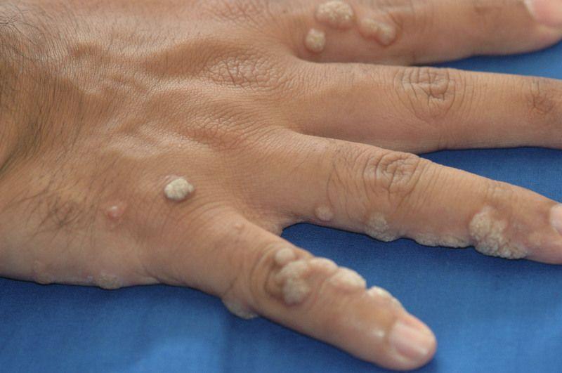 обычные бородавки на пальцах рук