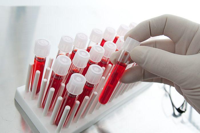 анализ крови на впч
