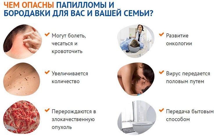 папилломавирусная инфекция у женщин