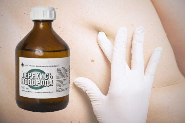 Лечение папиллом перекисью водорода по неумывакину